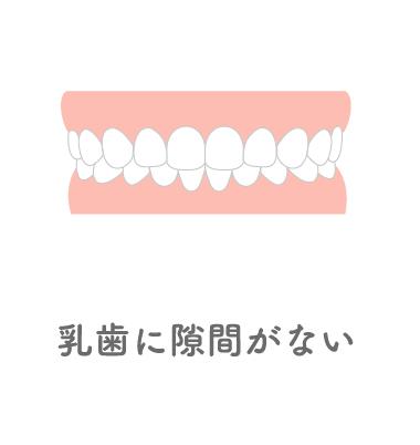 乳歯に隙間がない