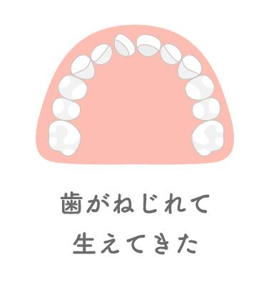 歯がねじれて生えてきた