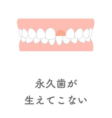 永久歯が生えてこない