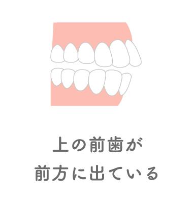 上の前歯が前方に出ている
