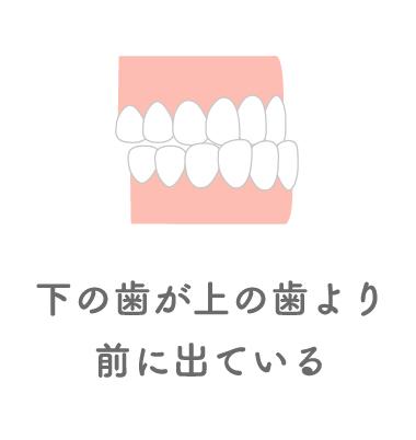 下の歯が上の歯より前に出ている