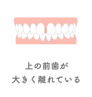 上の前歯が大きく離れている