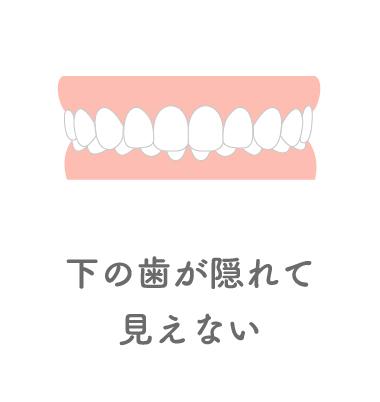 下の歯が隠れて見えない