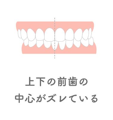 上下の前歯の中心がズレている